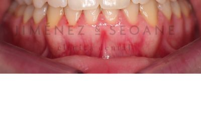 – Corrección del Canteo de plano mediante ortodoncia fija